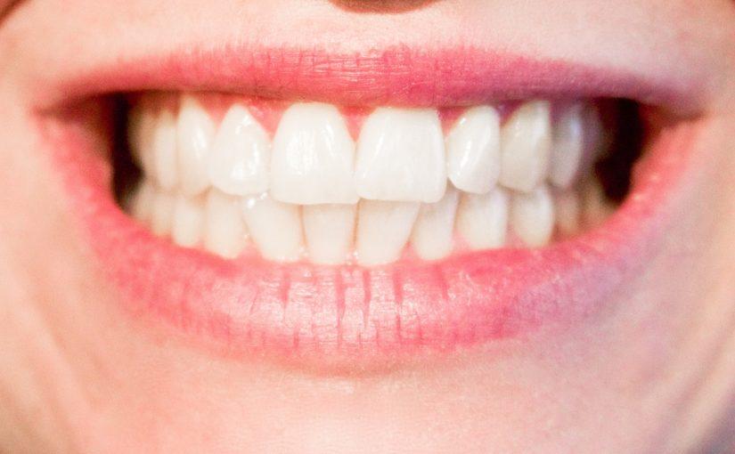 Obecna technika wykorzystywana w salonach stomatologii estetycznej zdoła spowodować, że odbierzemy śliczny uśmiech.